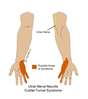 Causes of a Numb Pinkie Finger | LIVESTRONG.COM |Hand And Pinky Numb